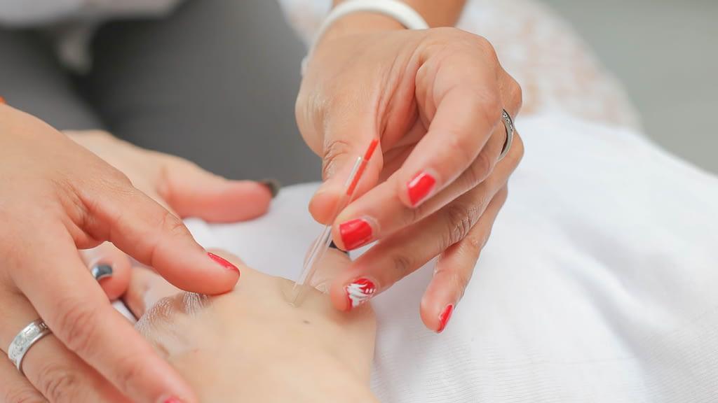 Rheumatology and Arthritis acupuncture