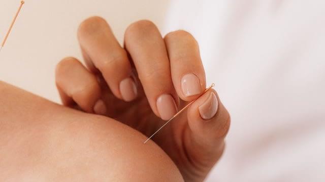 Acupuncture Pain